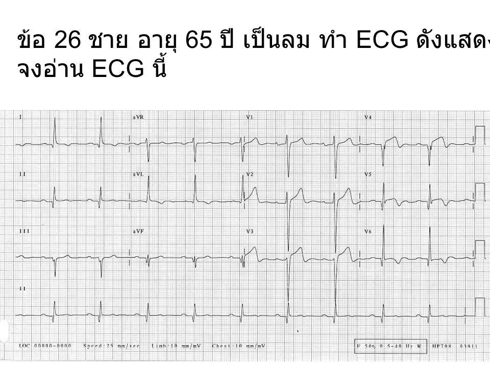 ข้อ 26 ชาย อายุ 65 ปี เป็นลม ทำ ECG ดังแสดง