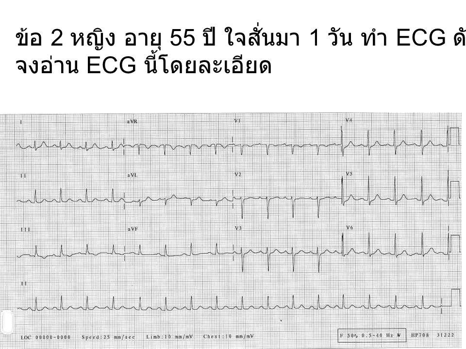 ข้อ 2 หญิง อายุ 55 ปี ใจสั่นมา 1 วัน ทำ ECG ดังแสดง