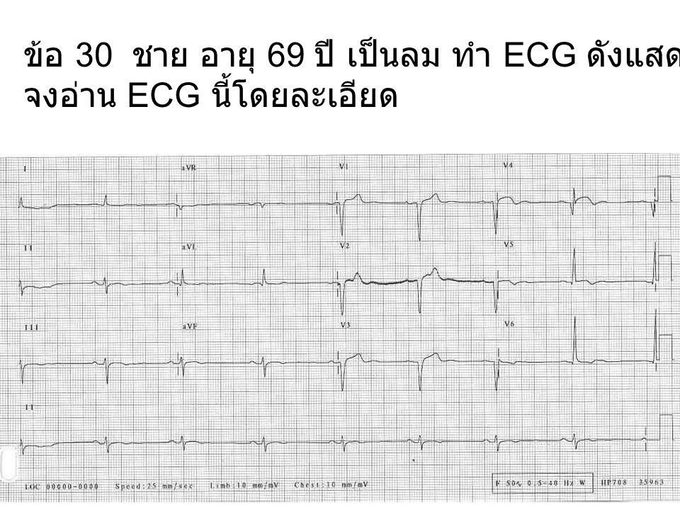 ข้อ 30 ชาย อายุ 69 ปี เป็นลม ทำ ECG ดังแสดง