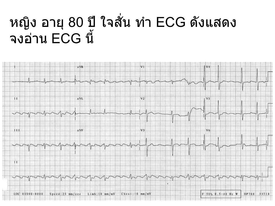 หญิง อายุ 80 ปี ใจสั่น ทำ ECG ดังแสดง