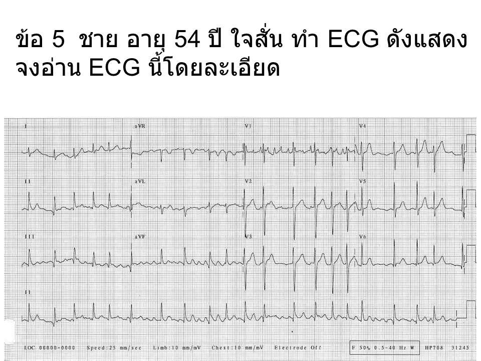 ข้อ 5 ชาย อายุ 54 ปี ใจสั่น ทำ ECG ดังแสดง