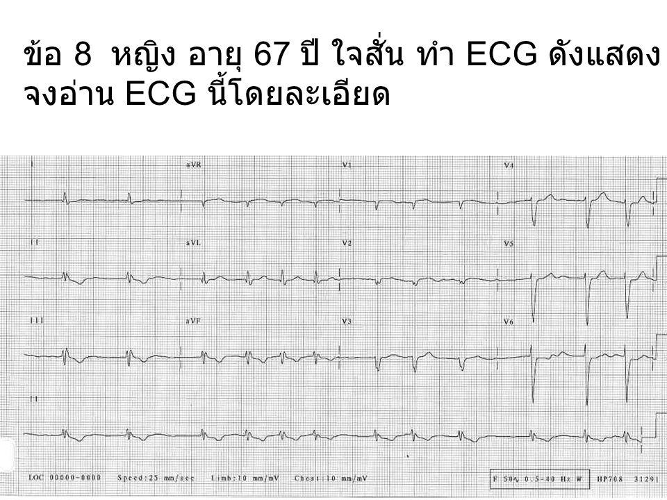ข้อ 8 หญิง อายุ 67 ปี ใจสั่น ทำ ECG ดังแสดง