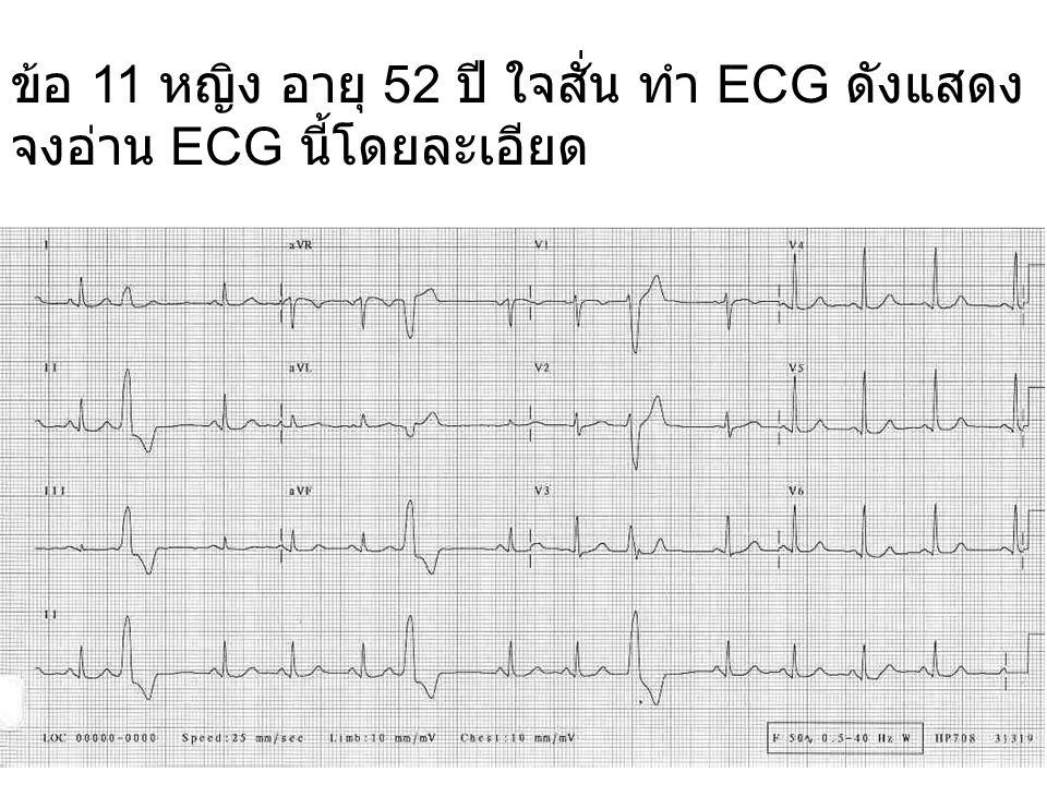 ข้อ 11 หญิง อายุ 52 ปี ใจสั่น ทำ ECG ดังแสดง