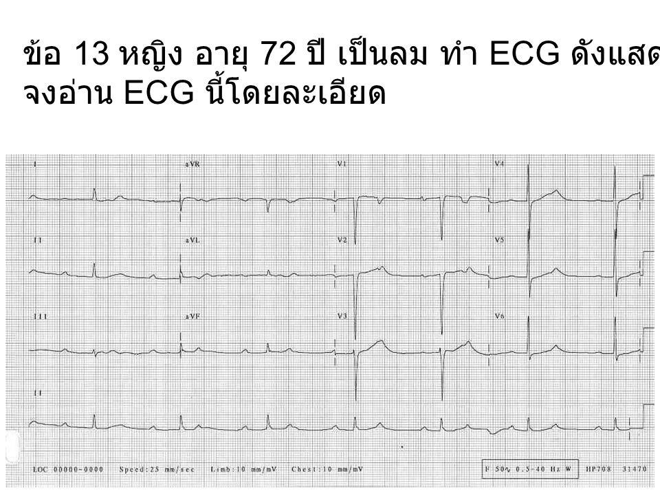 ข้อ 13 หญิง อายุ 72 ปี เป็นลม ทำ ECG ดังแสดง