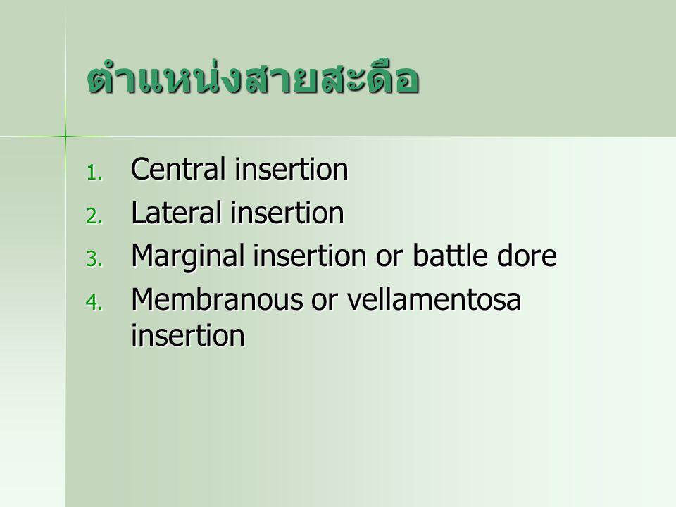 ตำแหน่งสายสะดือ Central insertion Lateral insertion
