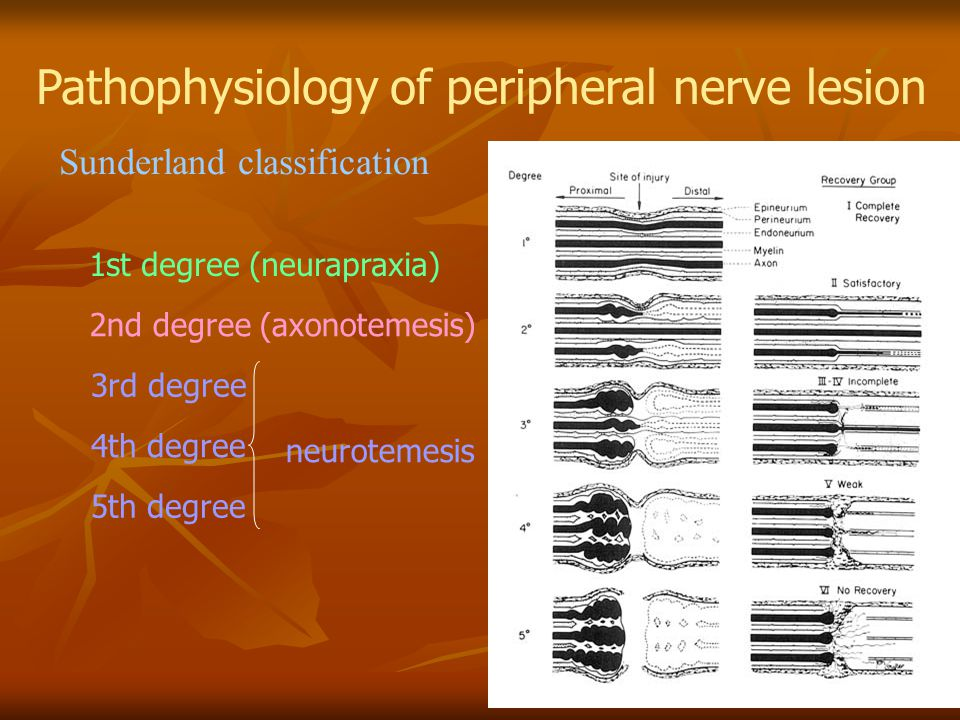 Pathophysiology of peripheral nerve lesion