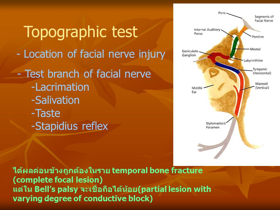 Topographic test - Location of facial nerve injury