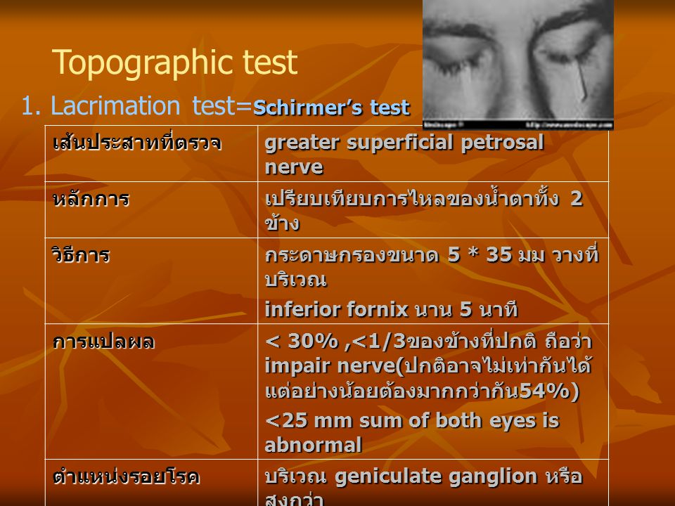 Topographic test 1. Lacrimation test=Schirmer's test เส้นประสาทที่ตรวจ