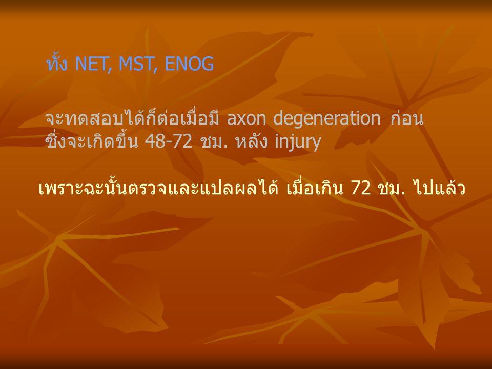 ทั้ง NET, MST, ENOG จะทดสอบได้ก็ต่อเมื่อมี axon degeneration ก่อน. ซึ่งจะเกิดขึ้น 48-72 ชม. หลัง injury.