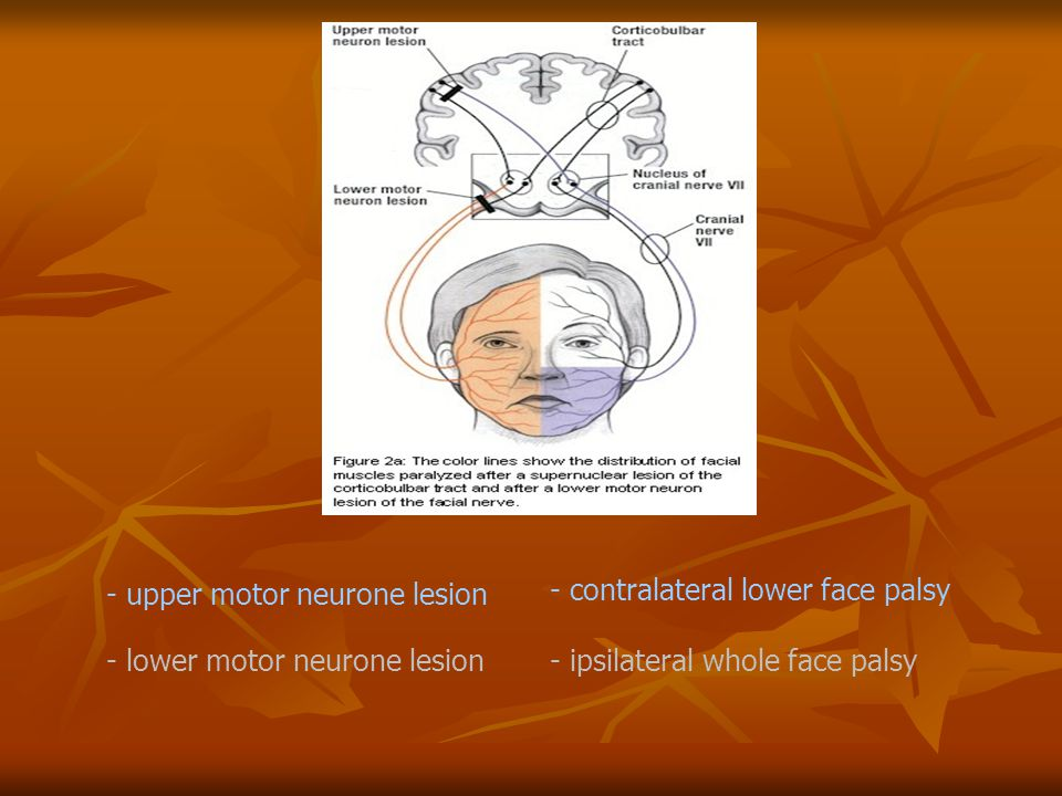 - upper motor neurone lesion