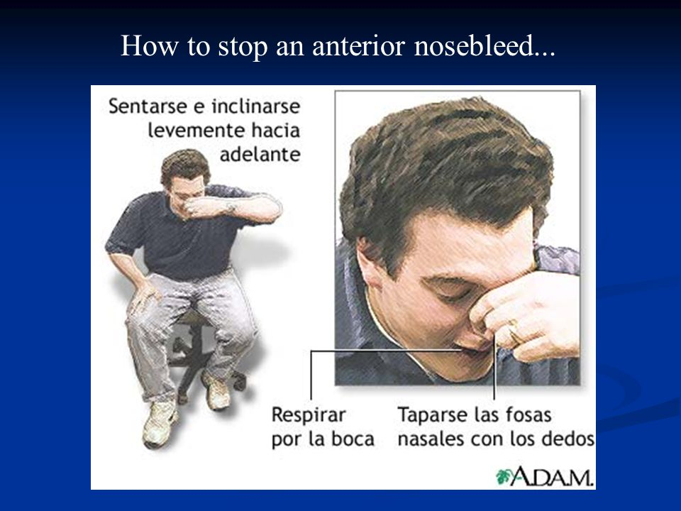 How to stop an anterior nosebleed...