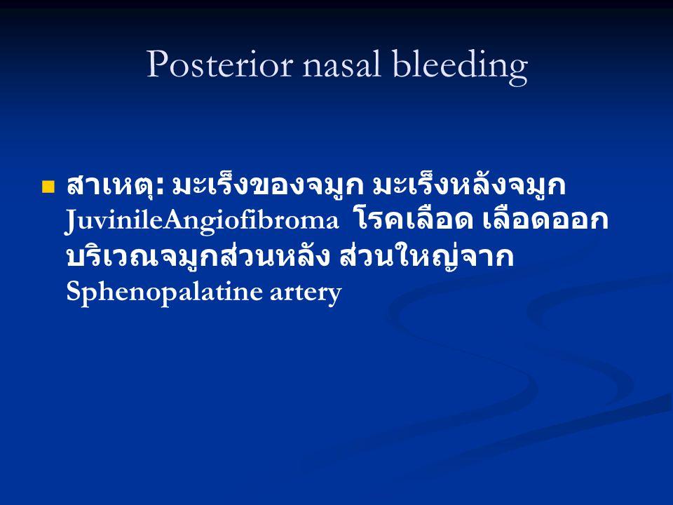 Posterior nasal bleeding