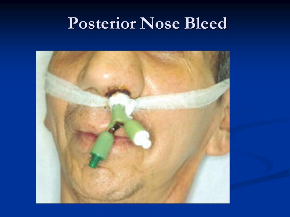 Posterior Nose Bleed