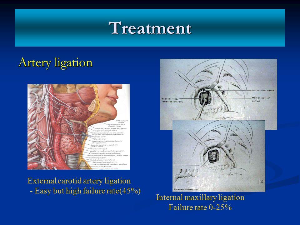 Treatment Artery ligation External carotid artery ligation