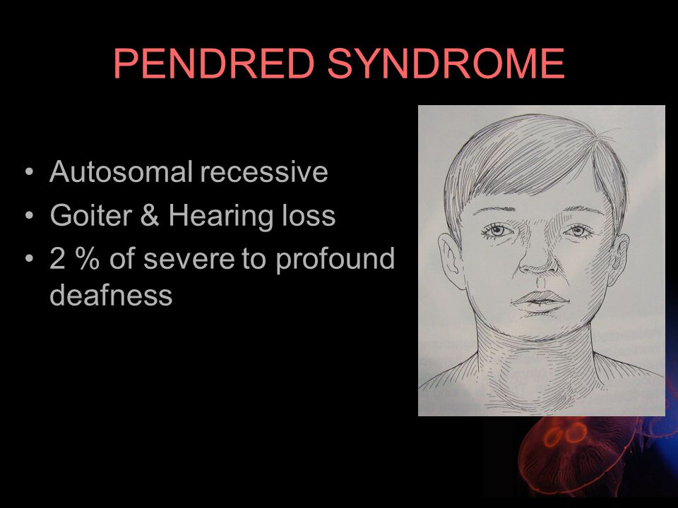 PENDRED SYNDROME Autosomal recessive Goiter & Hearing loss