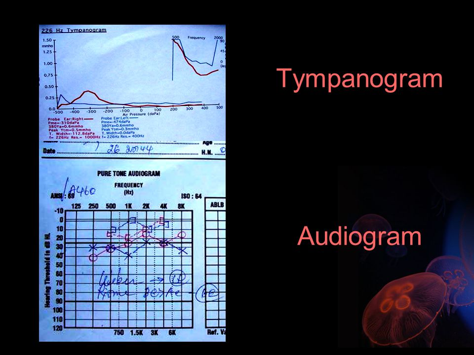 Tympanogram Audiogram
