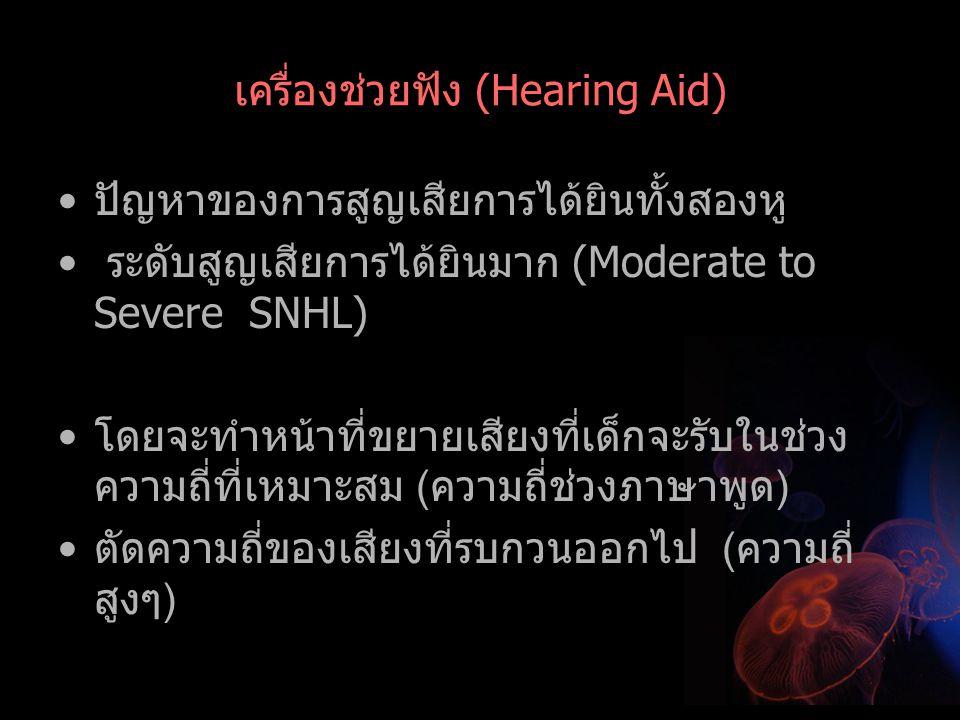 เครื่องช่วยฟัง (Hearing Aid)