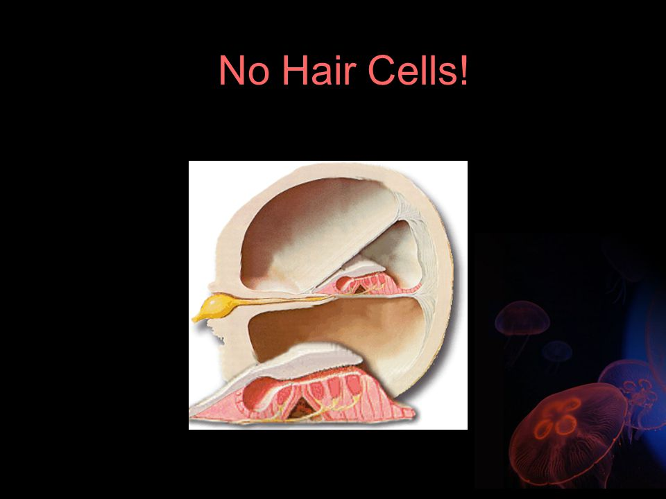 No Hair Cells!