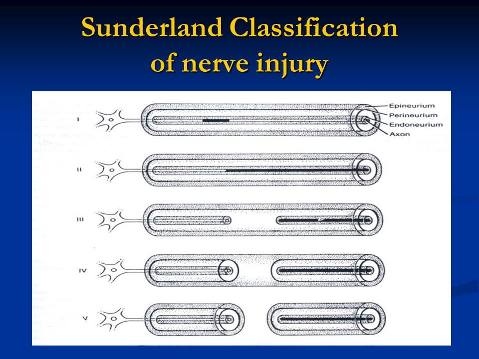 Sunderland Classification of nerve injury