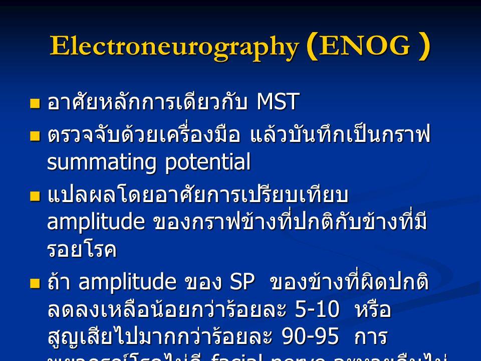 Electroneurography (ENOG )