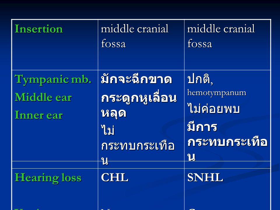 Insertion middle cranial fossa. Tympanic mb. Middle ear. Inner ear. มักจะฉีกขาด. กระดูกหูเลื่อนหลุด.