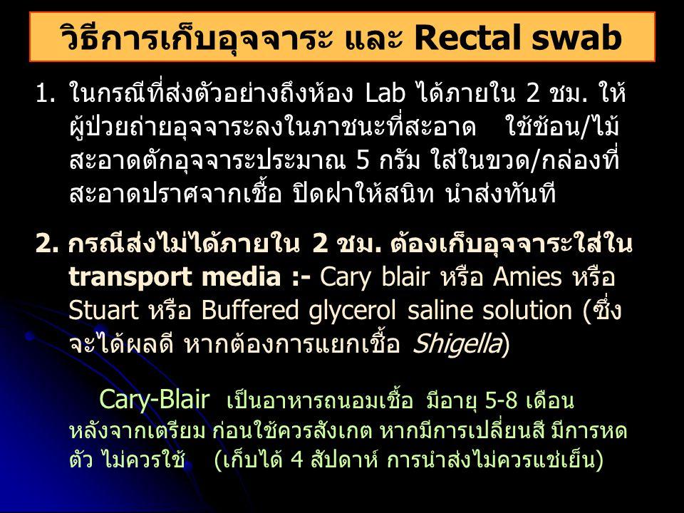วิธีการเก็บอุจจาระ และ Rectal swab