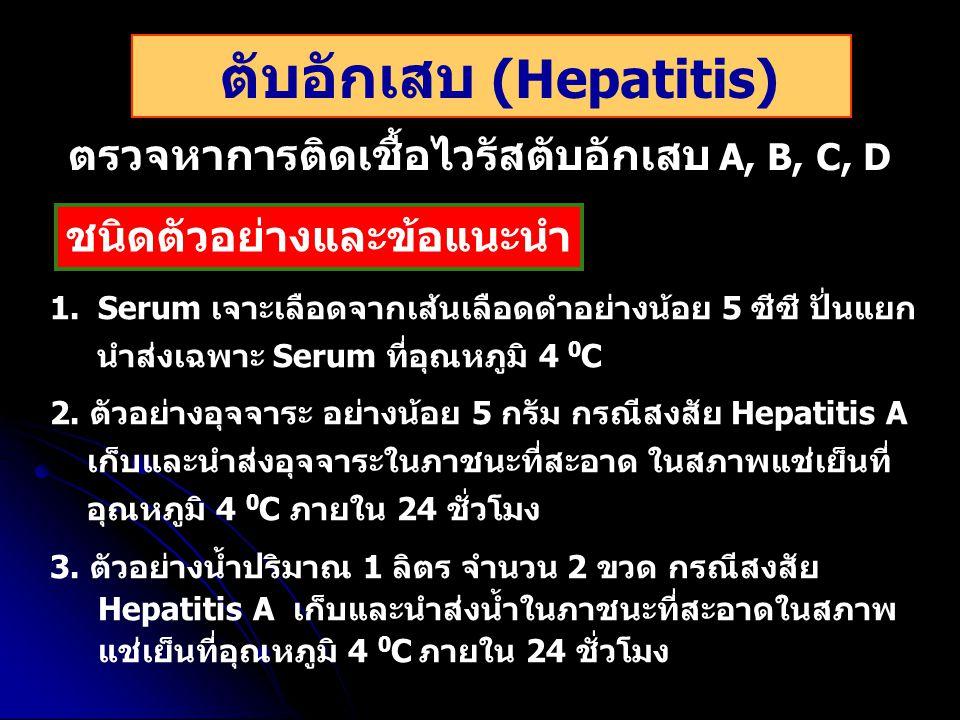 ตับอักเสบ (Hepatitis)