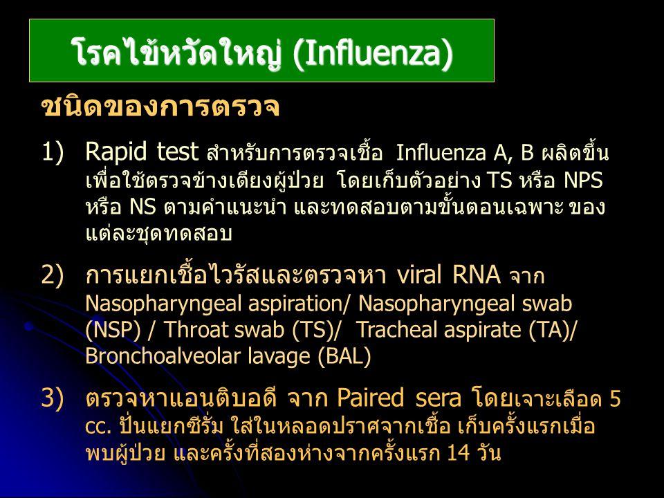 โรคไข้หวัดใหญ่ (Influenza)