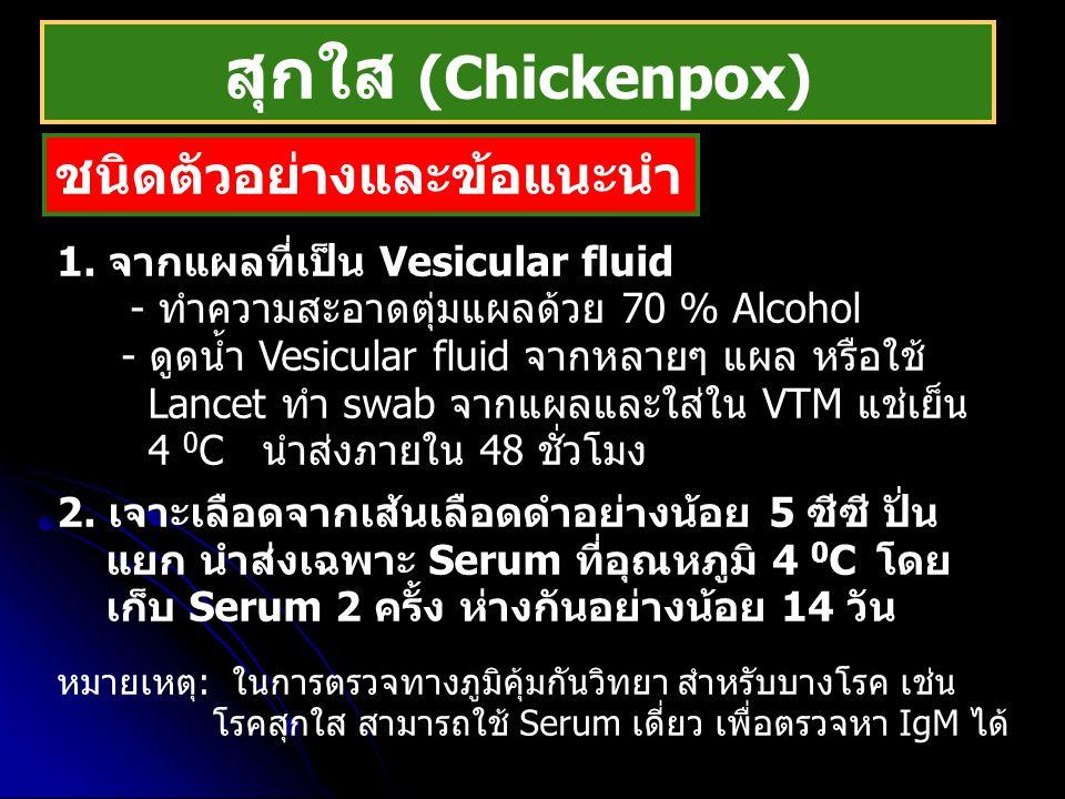 สุกใส (Chickenpox) ชนิดตัวอย่างและข้อแนะนำ