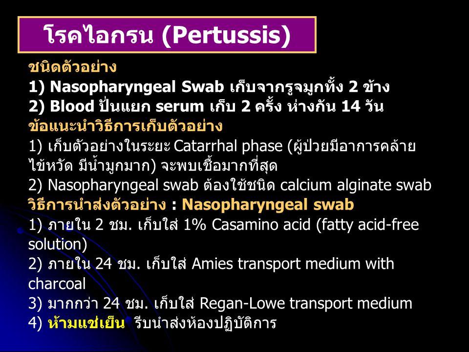 โรคไอกรน (Pertussis)