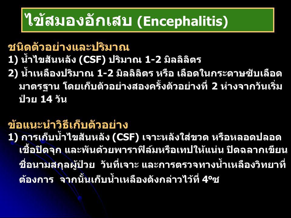 ไข้สมองอักเสบ (Encephalitis)