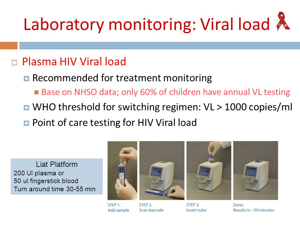Laboratory monitoring: Viral load