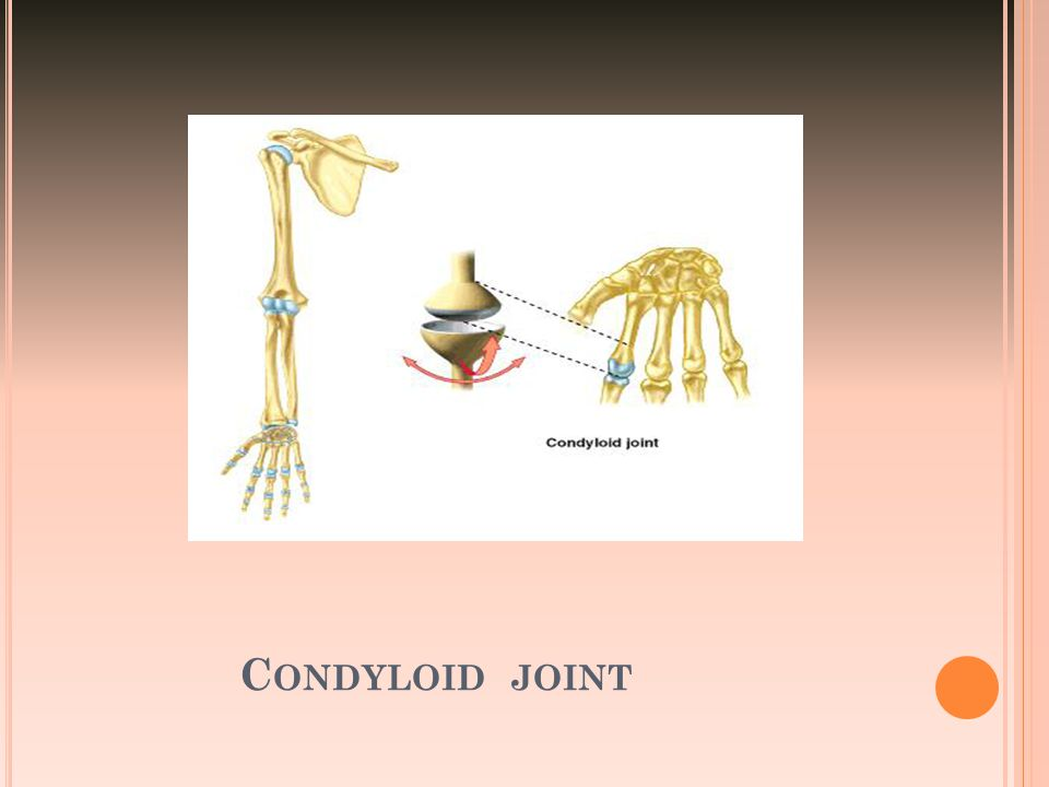 Condyloid joint