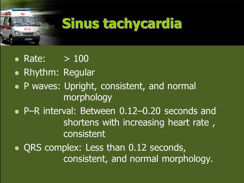 Sinus tachycardia Rate: > 100 Rhythm: Regular