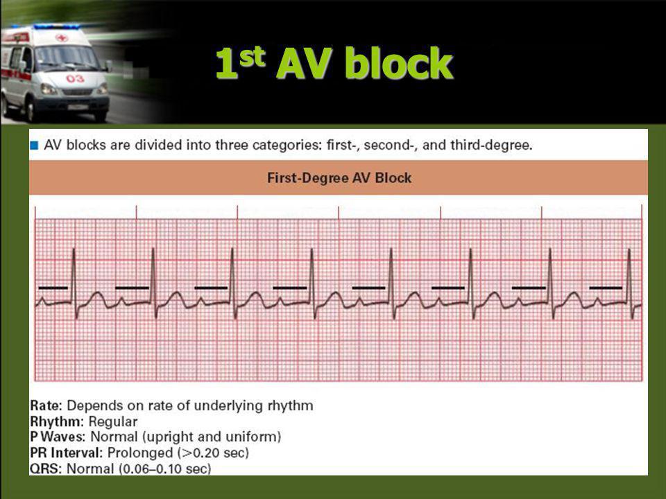 1st AV block