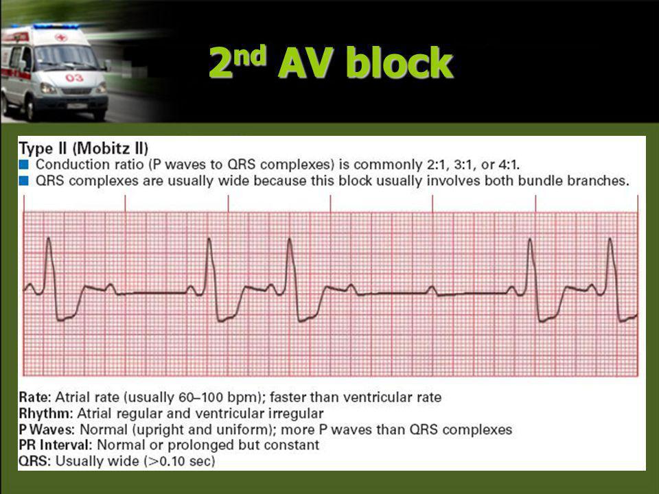 2nd AV block