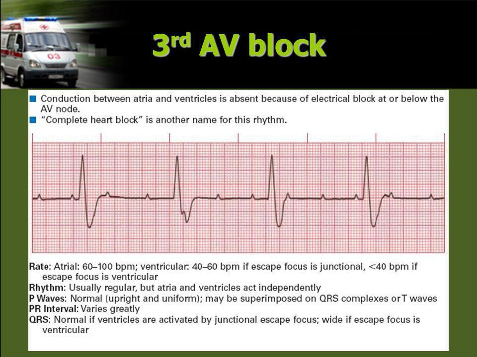 3rd AV block