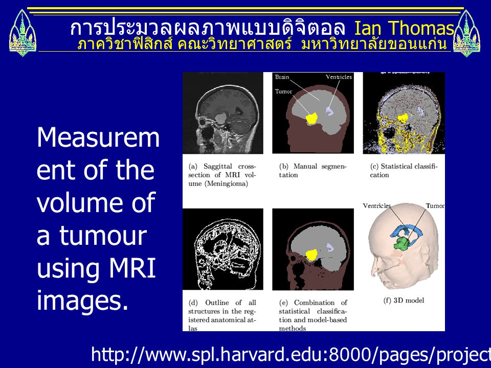 Measurement of the volume of a tumour using MRI images.