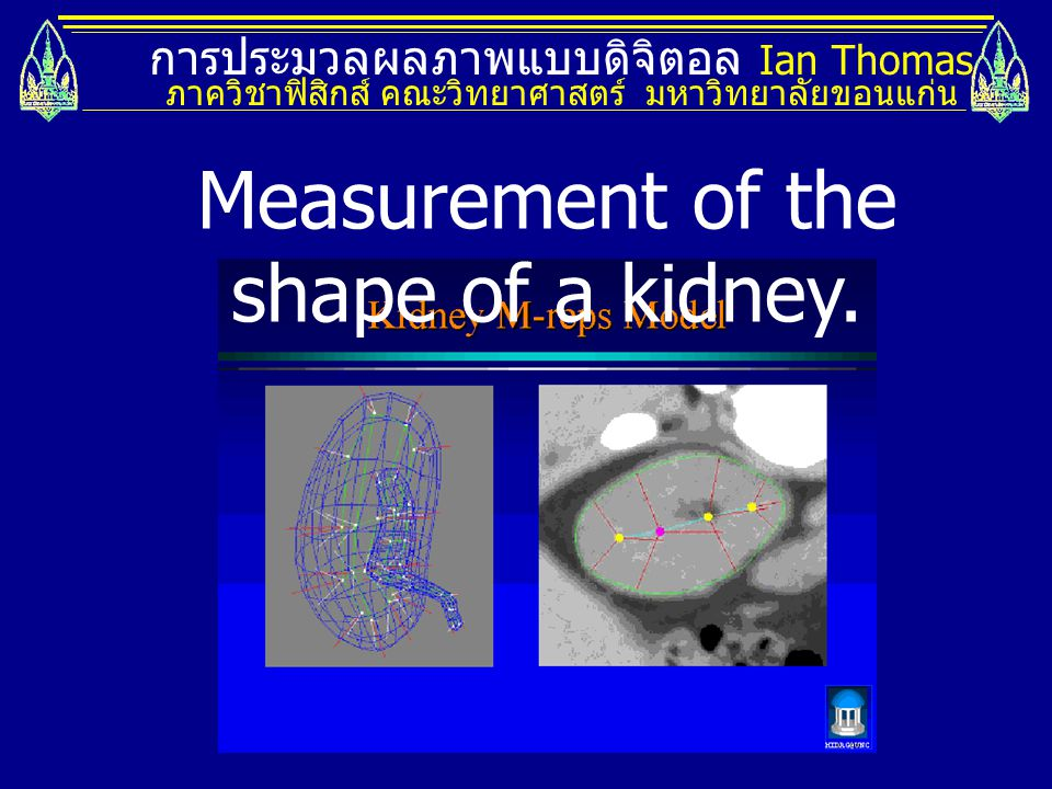 Measurement of the shape of a kidney.