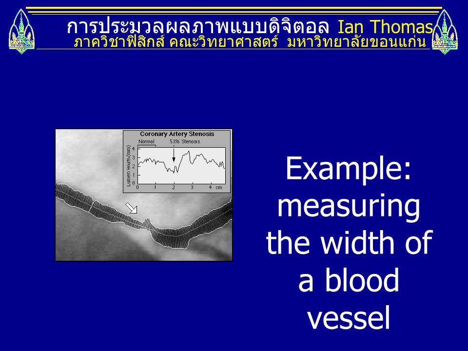 Example: measuring the width of a blood vessel