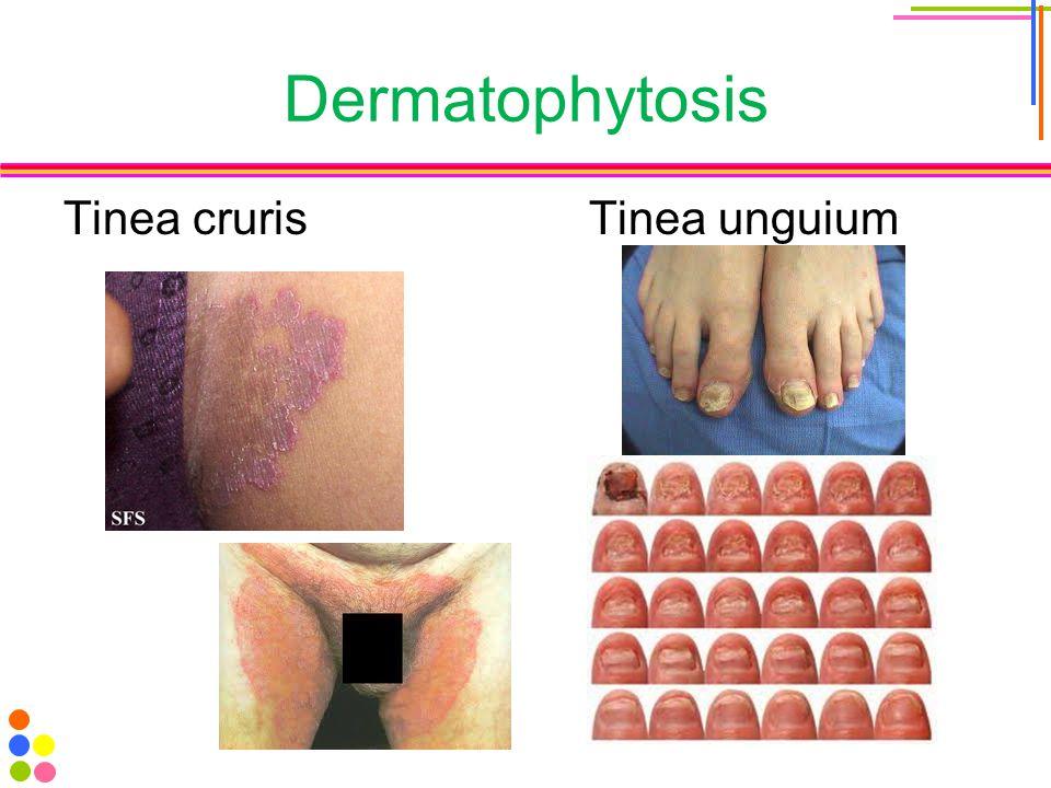 Dermatophytosis Tinea cruris Tinea unguium