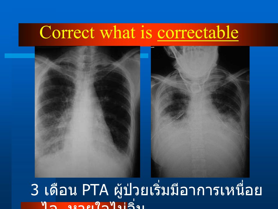 Correct what is correctable