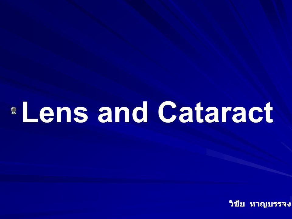 Lens and Cataract วิชัย หาญบรรจง / 2550