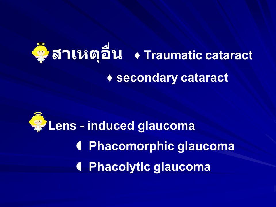 สาเหตุอื่น ♦ Traumatic cataract