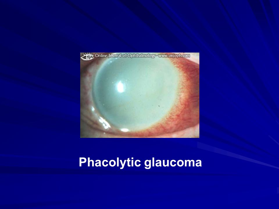 Phacolytic glaucoma