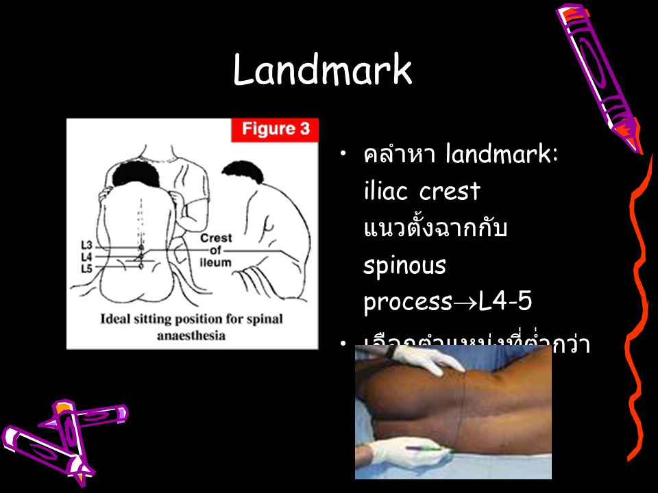 Landmark คลำหา landmark: iliac crest แนวตั้งฉากกับ spinous processL4-5 เลือกตำแหน่งที่ต่ำกว่า L2