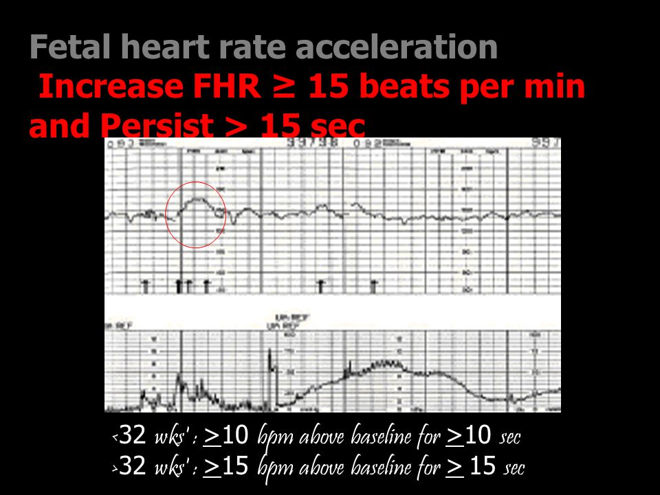 Fetal heart rate acceleration