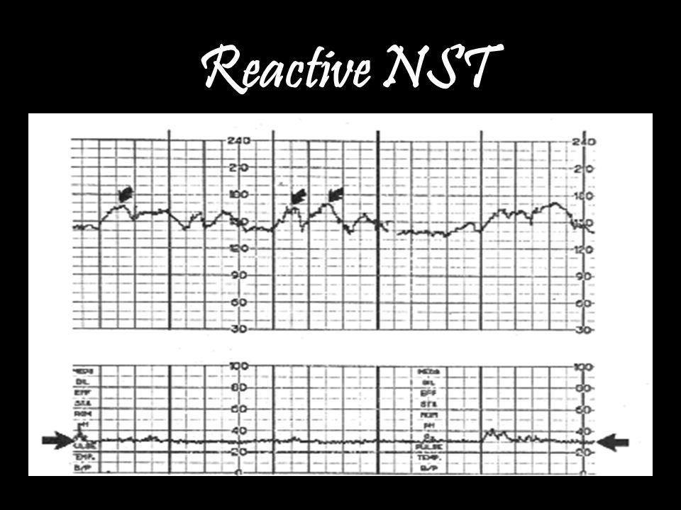 Reactive NST