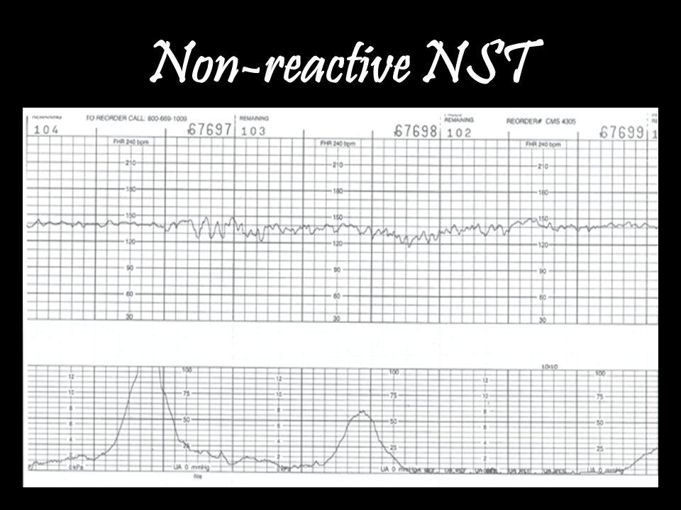 Non-reactive NST
