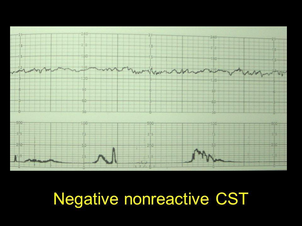 Negative nonreactive CST